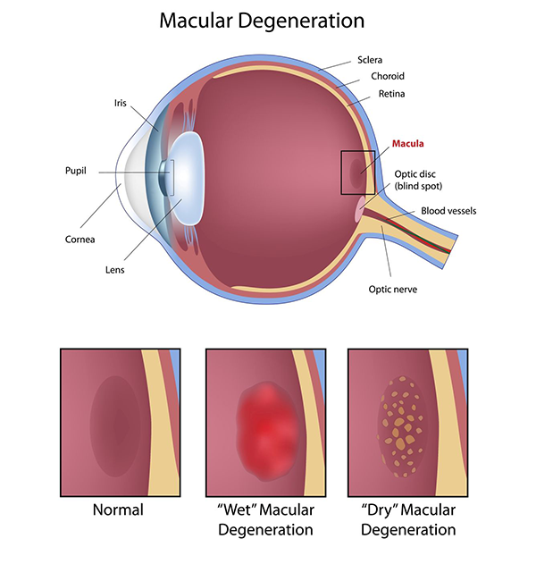 Macular Degeneration Causes Maspeth